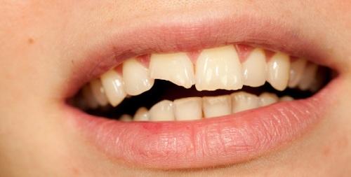 sportska povreda zuba