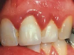 zubi u trudnoći