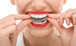 folije za ispravljanje zuba