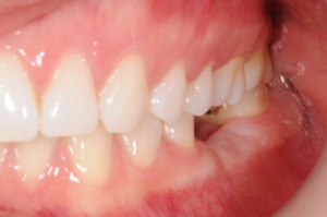 jedan izvađen zub