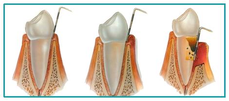 Parodontopatija (paradentoza)
